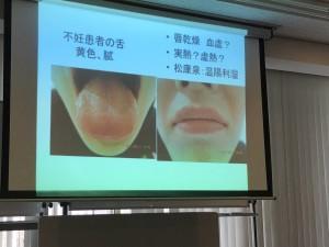 Drショウキ舌診